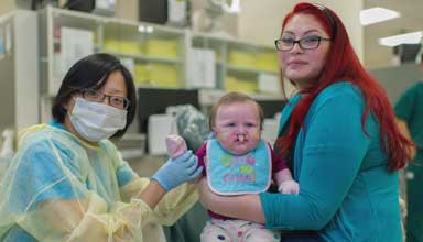 Pediatric cleft lip and palate treatment patient with doctor and mother. Cosmetic dentistry is needed to repair the cleft.