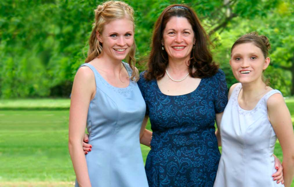 Jannine Cody Chromosome 18 researcher with her daughters