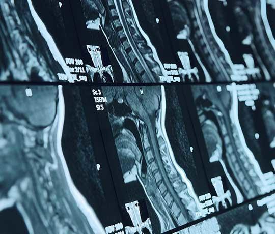 Neuroradiology scan