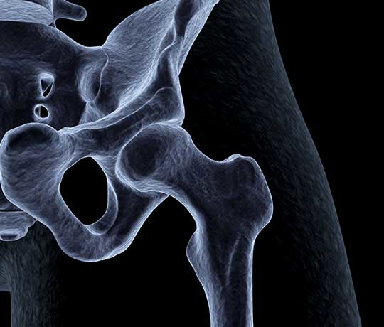 X-ray image of hip