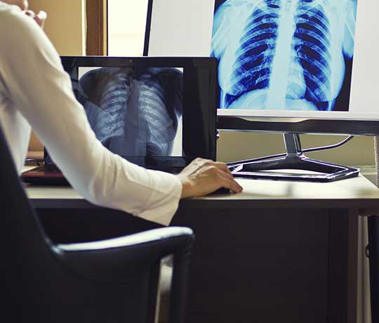 Doctor looking at chest x-ray image