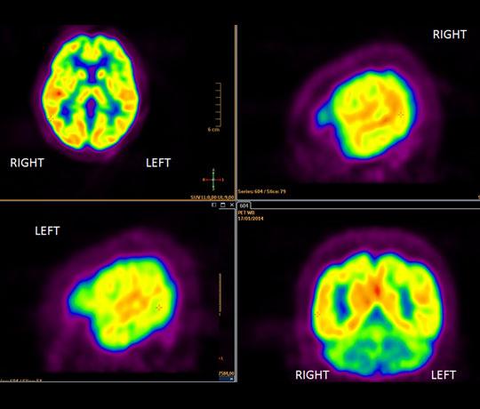 Nuclear radiology scan