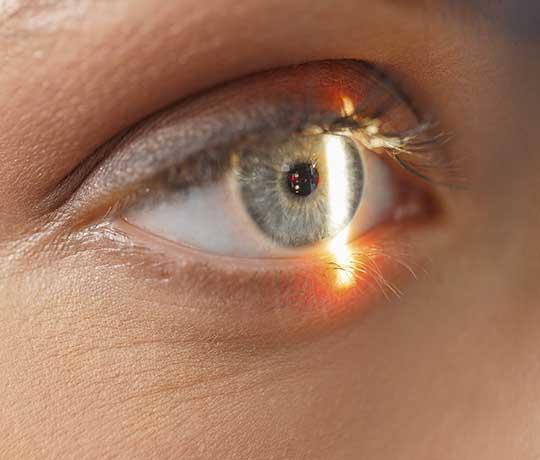 Patient's eye