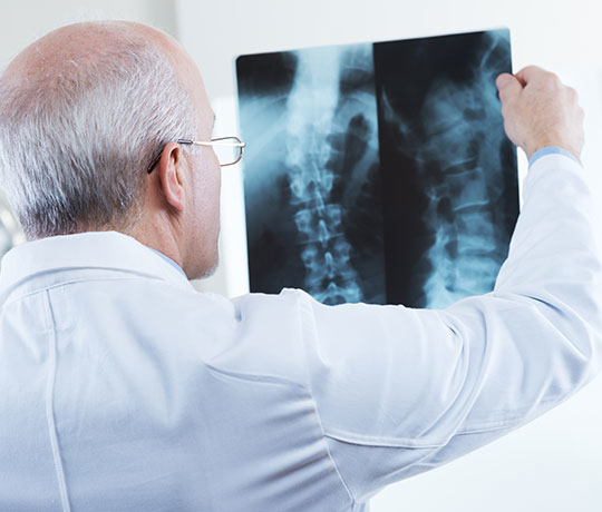 Physician looking at x-ray of a spine