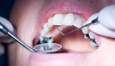 Dentist examining patient with amalgam fillings