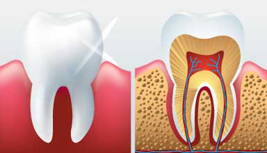 Examples of teeth with periodontitis in need of gum disease treatment