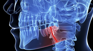 Digital image of patient's jaw bone fracture injury. Jaw surgery will be needed.