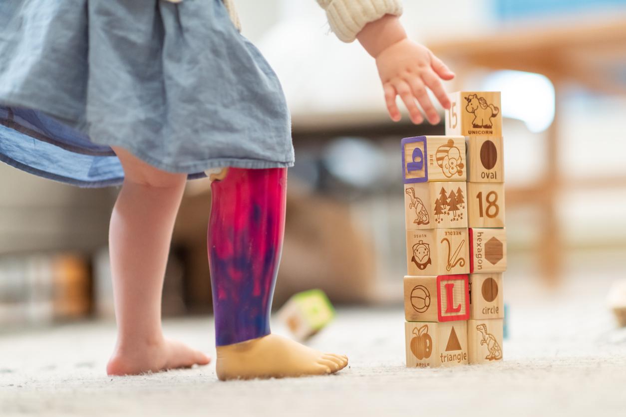 preschool girl with prosthetic leg