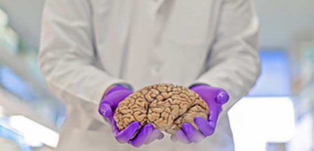 Biggs Institute doctor holding a brain