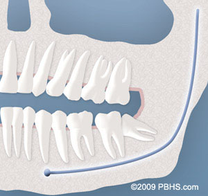 partial bony - UT Dentistry - San Antonio
