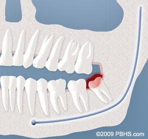 Wisdom Tooth Removal Ut Dentistry