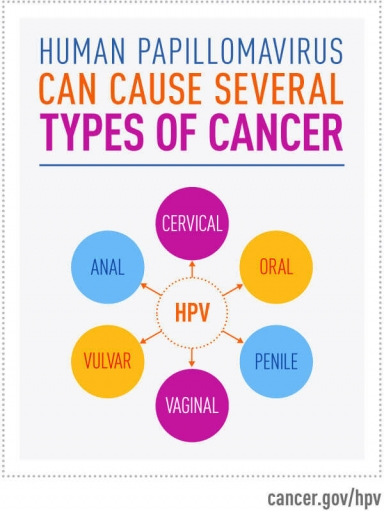 HPV causes six types of cancer