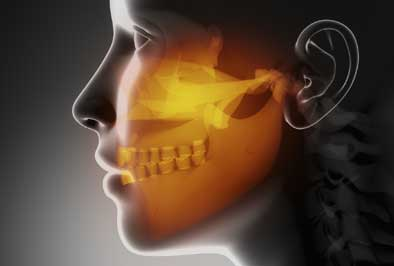 Chronic jaw pain requiring corrective jaw surgery