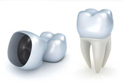 Crown lengthening may be necessary to fix a tooth where the remaining structure is not exposed enough above the gum line.