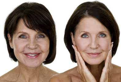 Before and after of a patient who had facial cosmetic dental surgery