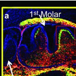 molar image