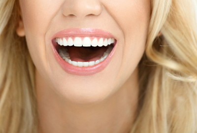 Patient displaying dental veneer results of white, perfect teeth with a smile